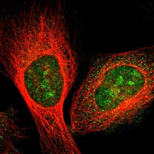 Immunocytochemistry/ Immunofluorescence - Anti-GRAMD1B antibody (ab121286)
