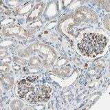 Immunohistochemistry (Formalin/PFA-fixed paraffin-embedded sections) - Anti-FAM49B antibody (ab121299)