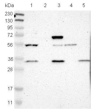 Western blot - Anti-FAM49B antibody (ab121299)