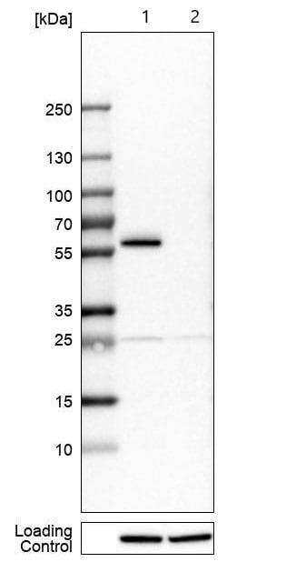 Western blot - Anti-B4GALT1 antibody (ab121326)