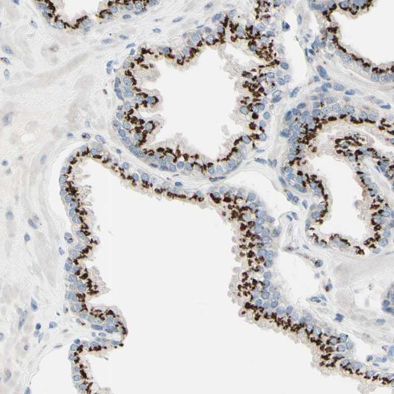 Immunohistochemistry (Formalin/PFA-fixed paraffin-embedded sections) - Anti-B4GALT1 antibody (ab121326)