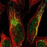 Immunocytochemistry/ Immunofluorescence - Anti-CCDC51 antibody (ab121329)