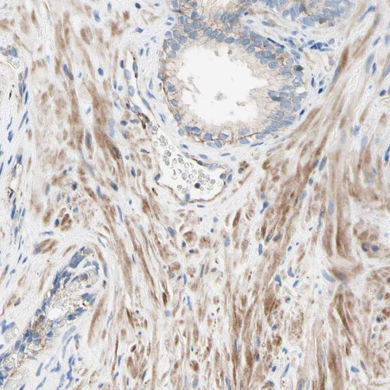 Immunohistochemistry (Formalin/PFA-fixed paraffin-embedded sections) - Anti-SEMA4C/SEMAI antibody (ab121334)