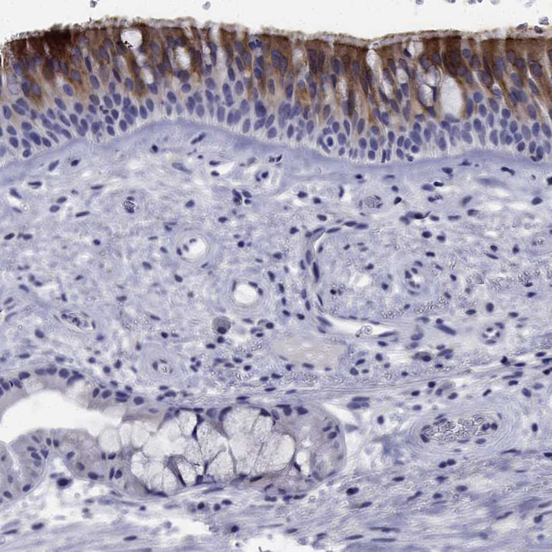 Immunohistochemistry (Formalin/PFA-fixed paraffin-embedded sections) - Anti-FLJ23834 antibody (ab121337)