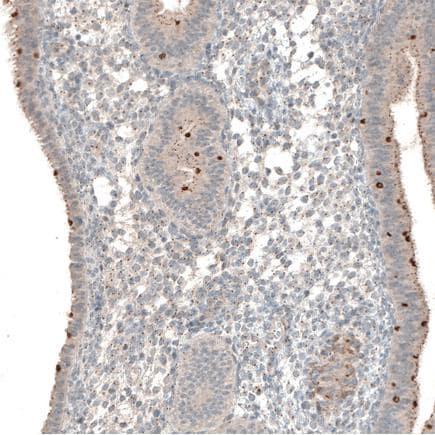 Immunohistochemistry (Formalin/PFA-fixed paraffin-embedded sections) - Anti-Mare antibody (ab121346)