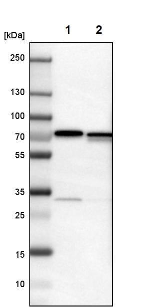 Western blot - Anti-LRRC47 antibody (ab121355)