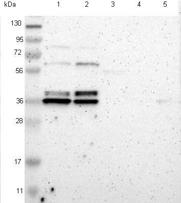 Western blot - Anti-TMBIM1 antibody (ab121358)