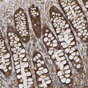 Immunohistochemistry (Formalin/PFA-fixed paraffin-embedded sections) - Anti-TMBIM1 antibody (ab121358)
