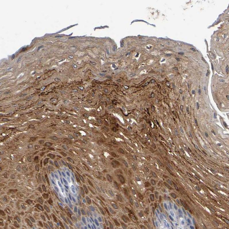 Immunohistochemistry (Formalin/PFA-fixed paraffin-embedded sections) - Anti-PP11 antibody (ab121367)
