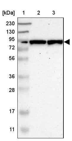 Western blot - Anti-GALNT8 antibody (ab121374)