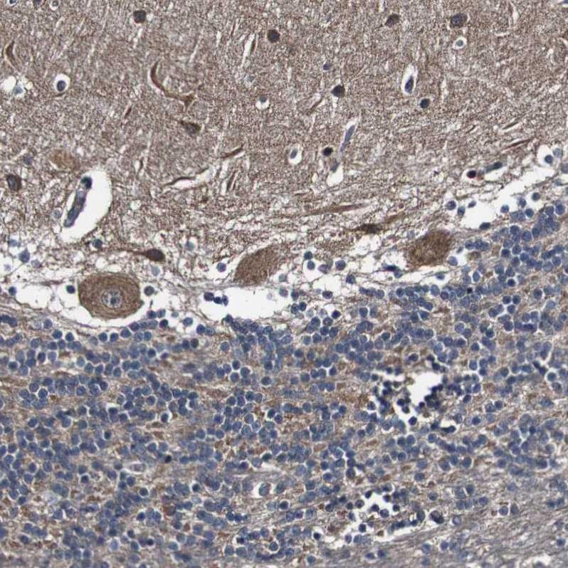 Immunohistochemistry (Formalin/PFA-fixed paraffin-embedded sections) - Anti-GALNT8 antibody (ab121374)
