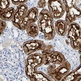 Immunohistochemistry (Formalin/PFA-fixed paraffin-embedded sections) - Anti-DPEP1/MDP antibody (ab121380)