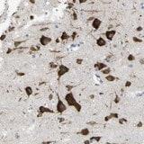 Immunohistochemistry (Formalin/PFA-fixed paraffin-embedded sections) - Anti-MYEOV antibody (ab121387)