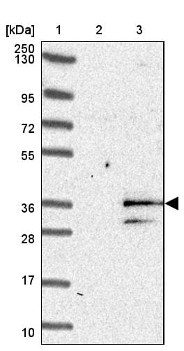 Western blot - Anti-MYEOV antibody (ab121387)