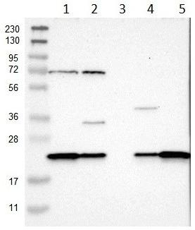 Western blot - Anti-SPCS2/SPC25 antibody (ab121395)