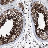 Immunohistochemistry (Formalin/PFA-fixed paraffin-embedded sections) - Anti-TBC1D15 antibody (ab121396)
