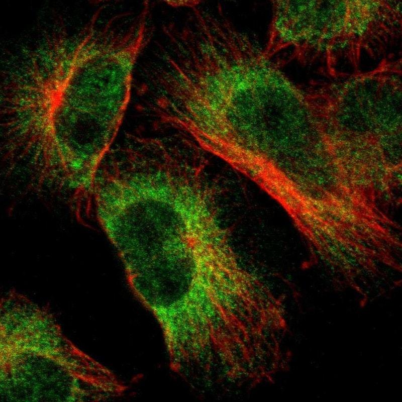 Immunocytochemistry/ Immunofluorescence - Anti-LNP antibody (ab121416)