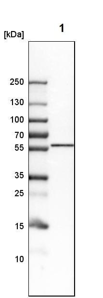 Western blot - Anti-LNP antibody (ab121416)