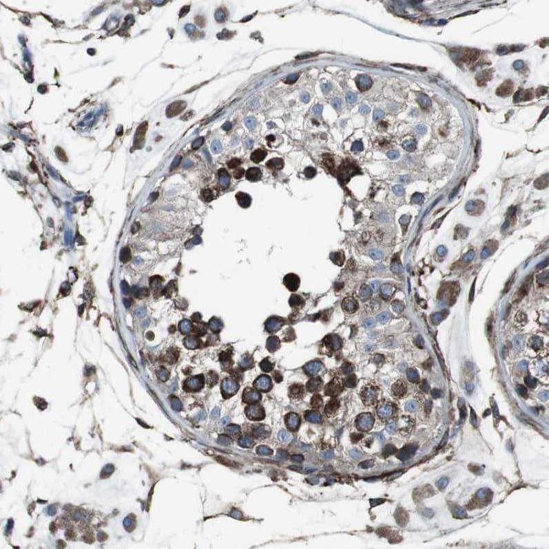 Immunohistochemistry (Formalin/PFA-fixed paraffin-embedded sections) - Anti-LNP antibody (ab121416)