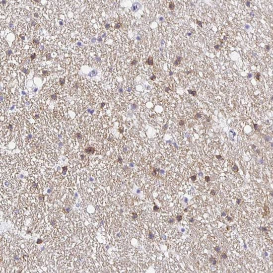 Immunohistochemistry (Formalin/PFA-fixed paraffin-embedded sections) - Anti-OPALIN antibody (ab121425)
