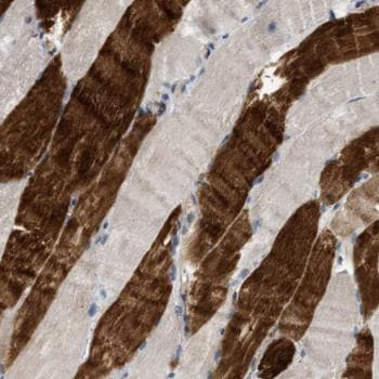 Immunohistochemistry (Formalin/PFA-fixed paraffin-embedded sections) - Anti-KIAA0513 antibody (ab121430)