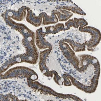 Immunohistochemistry (Formalin/PFA-fixed paraffin-embedded sections) - Anti-TMEM223 antibody (ab121434)