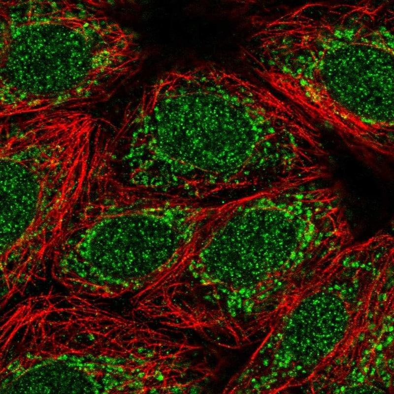 Immunocytochemistry/ Immunofluorescence - Anti-TMEM223 antibody (ab121434)