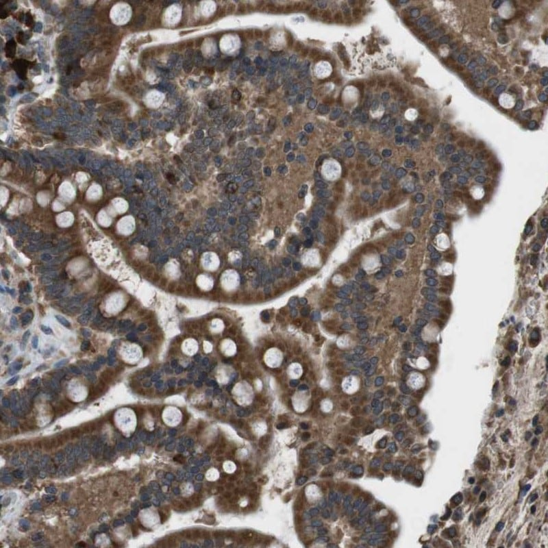 Immunohistochemistry (Formalin/PFA-fixed paraffin-embedded sections) - Anti-SSR3 antibody (ab121458)