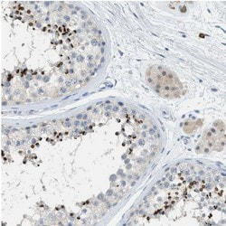 Immunohistochemistry (Formalin/PFA-fixed paraffin-embedded sections) - Anti-AFAF/Equatorin antibody (ab121461)