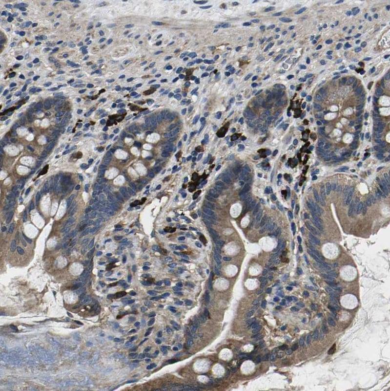 Immunohistochemistry (Formalin/PFA-fixed paraffin-embedded sections) - Anti-PLCE1 antibody (ab121476)