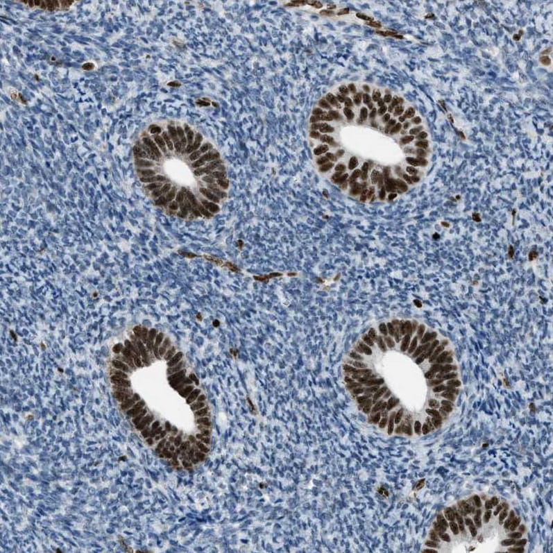 Immunohistochemistry (Formalin/PFA-fixed paraffin-embedded sections) - Anti-SLFN5 antibody (ab121537)