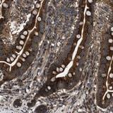 Immunohistochemistry (Formalin/PFA-fixed paraffin-embedded sections) - Anti-LYSMD3 antibody (ab121551)