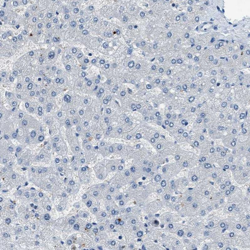 Immunohistochemistry (Formalin/PFA-fixed paraffin-embedded sections) - Anti-SLC38A6 antibody (ab121572)