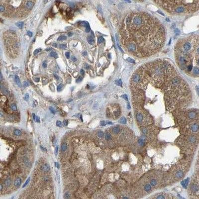 Immunohistochemistry (Formalin/PFA-fixed paraffin-embedded sections) - Anti-ATP8B1 antibody (ab121576)