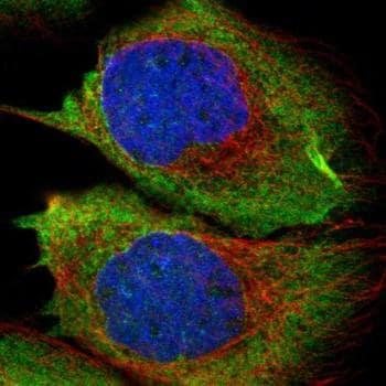 Immunocytochemistry/ Immunofluorescence - Anti-RASGRF2 antibody (ab121577)