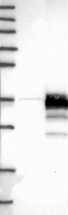 Western blot - Anti-STARD3NL antibody (ab121592)