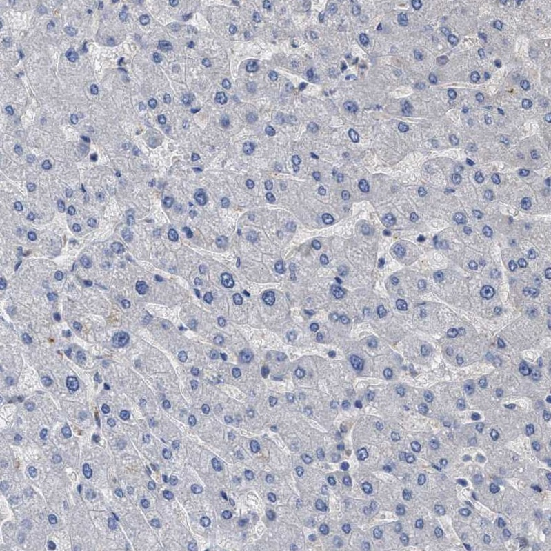 Immunohistochemistry (Formalin/PFA-fixed paraffin-embedded sections) - Anti-BTN2A1 antibody (ab121593)