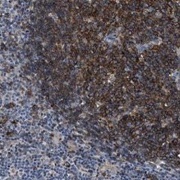 Immunohistochemistry (Formalin/PFA-fixed paraffin-embedded sections) - Anti-C2orf66 antibody (ab121640)