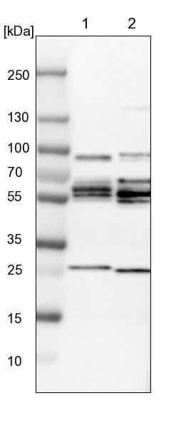 Western blot - Anti-PHF24 antibody (ab121643)
