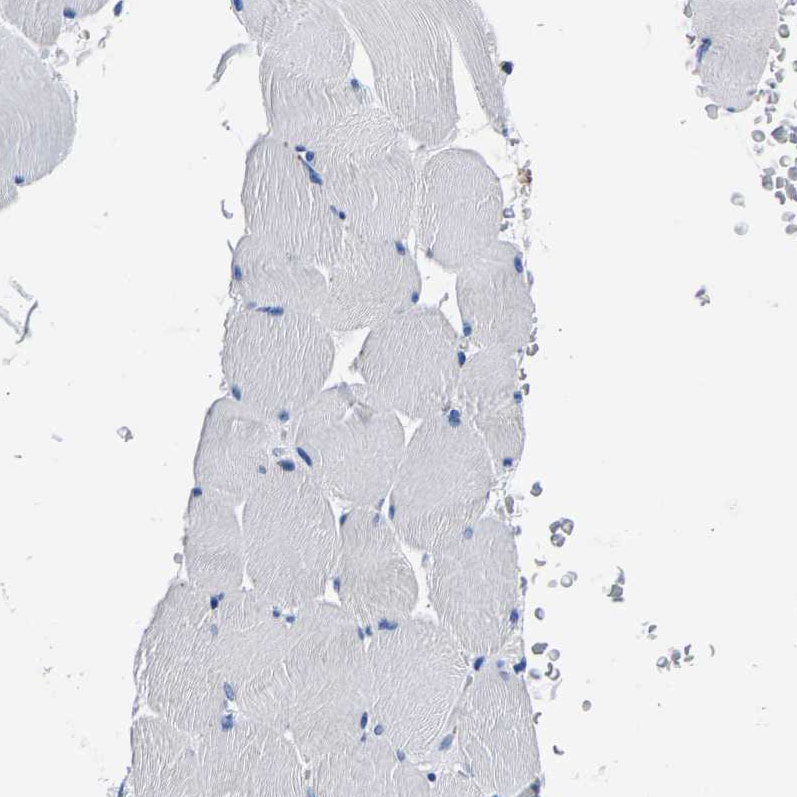 Immunohistochemistry (Formalin/PFA-fixed paraffin-embedded sections) - Anti-PHF24 antibody (ab121643)