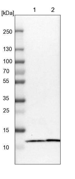 Western blot - Anti-LAMTOR4 antibody (ab121645)