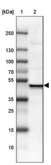Western blot - Anti-USP16 antibody (ab121650)