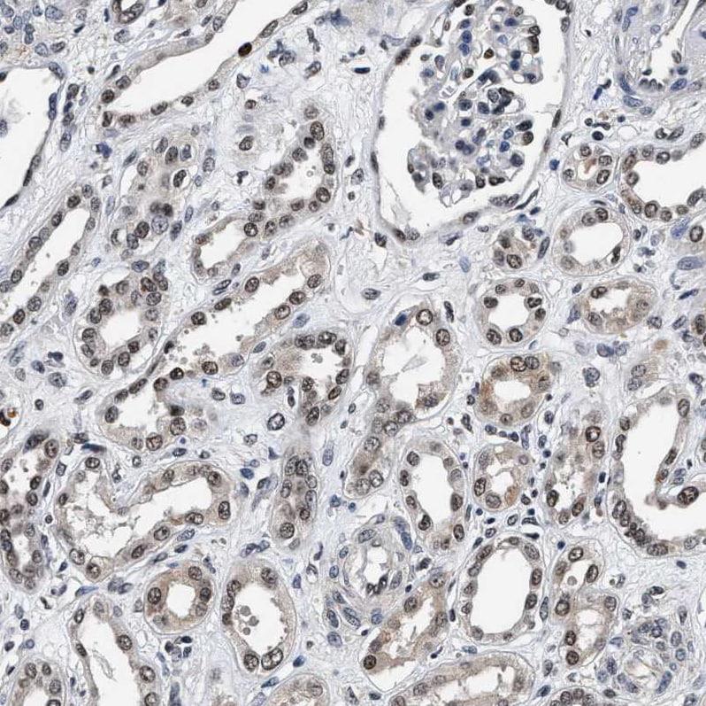 Immunohistochemistry (Formalin/PFA-fixed paraffin-embedded sections) - Anti-USP16 antibody (ab121650)