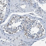 Immunohistochemistry (Formalin/PFA-fixed paraffin-embedded sections) - Anti-ANKFN1 antibody (ab121684)
