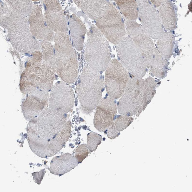 Immunohistochemistry (Formalin/PFA-fixed paraffin-embedded sections) - Anti-CDR2L antibody (ab121705)