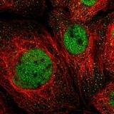 Immunocytochemistry/ Immunofluorescence - Anti-MSL1 antibody (ab121718)