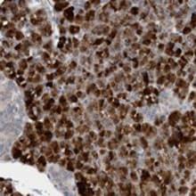 Immunohistochemistry (Formalin/PFA-fixed paraffin-embedded sections) - Anti-FBF-1 antibody (ab121770)