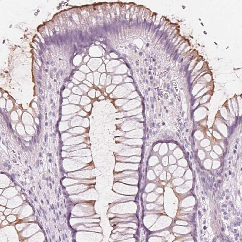 Immunohistochemistry (Formalin/PFA-fixed paraffin-embedded sections) - Anti-MUC12 antibody (ab121777)