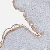 Immunohistochemistry (Formalin/PFA-fixed paraffin-embedded sections) - Anti-ALOX12B antibody (ab121785)