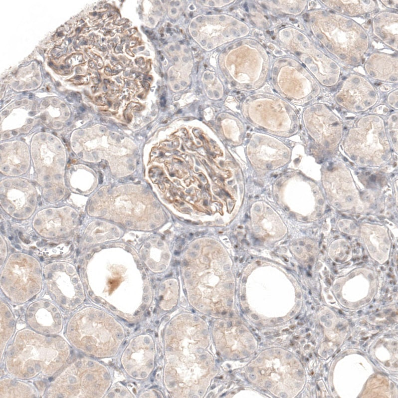 Immunohistochemistry (Formalin/PFA-fixed paraffin-embedded sections) - Anti-B7-H6 antibody (ab121794)
